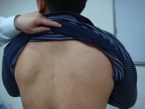 北京治疗白癜风专科医院:男性患上白癜风要注意的有哪些
