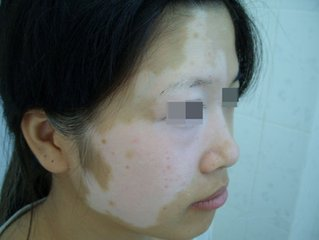 北京治疗白癜风医院:面部白癜风在饮食上要注意什么